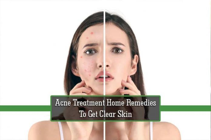 Acne Treatment, Home Remedies For Acne, clear skin