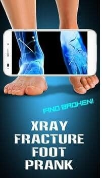 X-Ray Fracture Foot Prank App